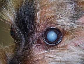 A mature cataract.