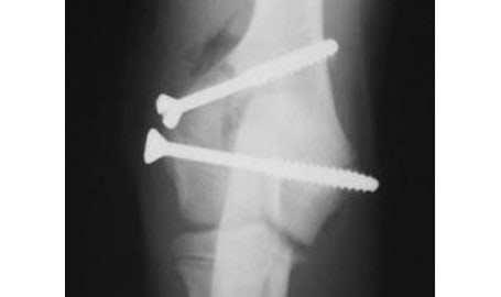 cat fracture