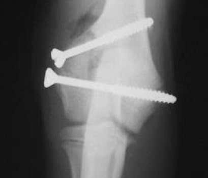 companion dog fractured bone