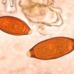 Whipworm Infection in Dogs and Cats