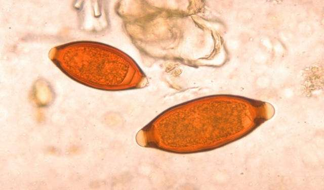 eggs from whipworm infection